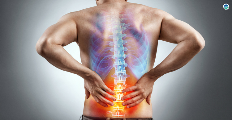 Spinal Fusion Surgeries