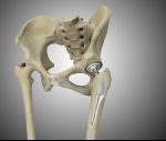 Patients may live longer after hip replacement, study suggests